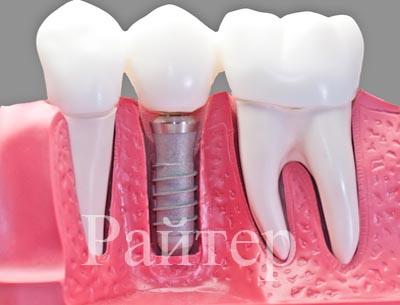 выполнить имплантацию зубов в Москве